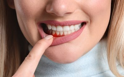 Gingivitis, ¿qué es, y cómo hacer para evitarla?