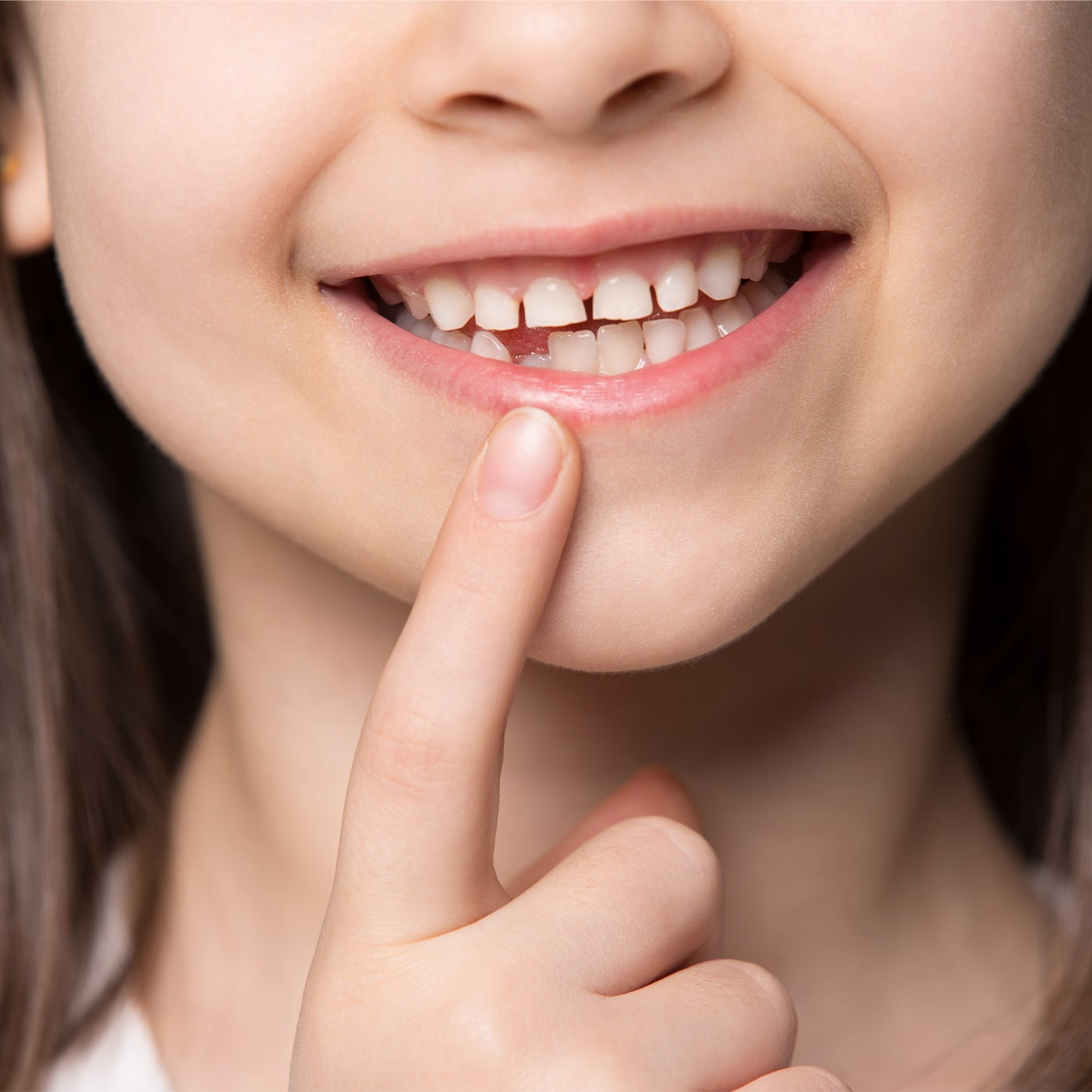 Niña muestra problema dental